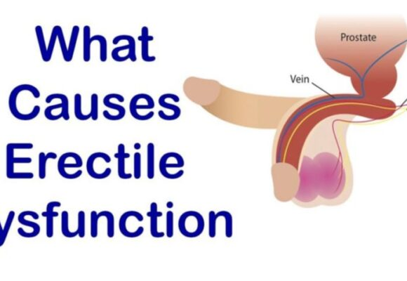 How to diagnose erectile dysfunction